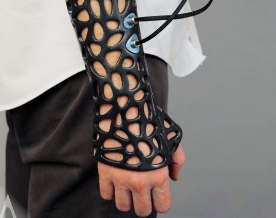 Osteoid-3D-Printed-Cast-1-537x424